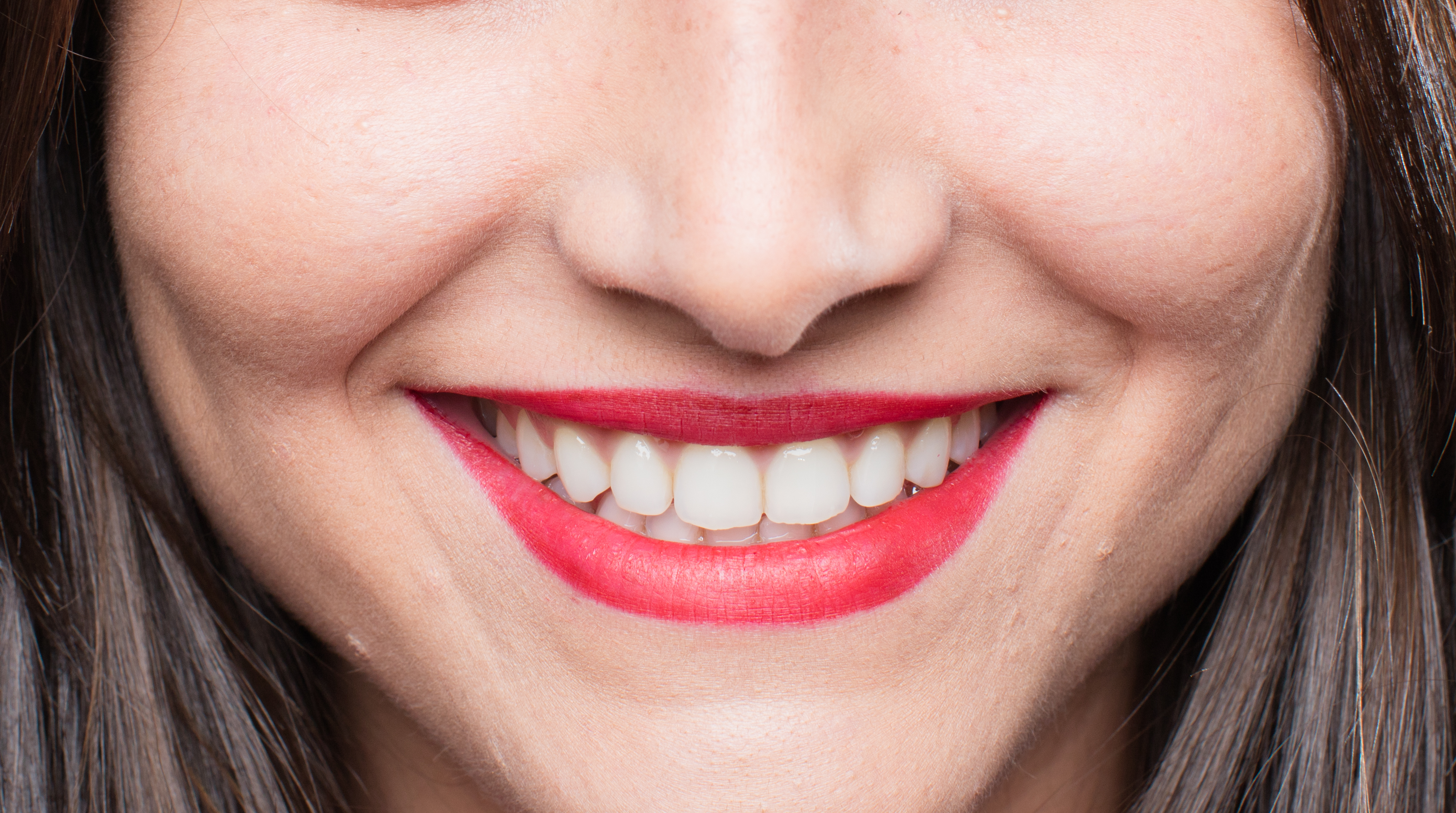 Sbiancamento denti fai da te: gli esperti lanciano l'allarme